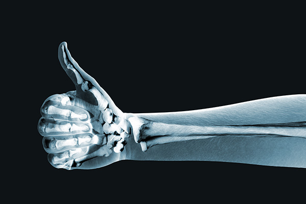 xray of a hand with the thumb up